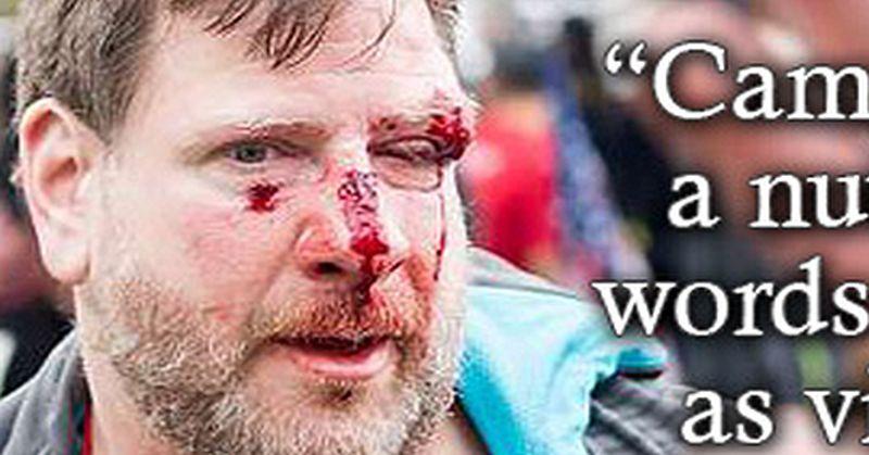 leftist lunacy on speech and violence brutally exposed